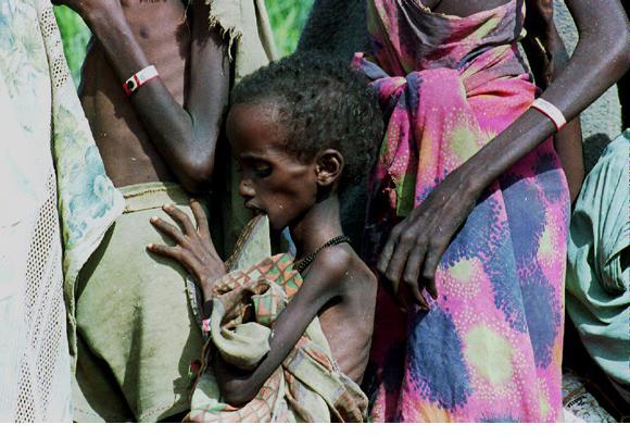 somalia-starving
